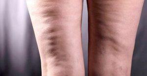 celulitis edematosa