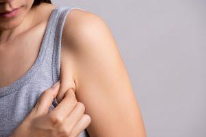 como reafirmar piel tras adelgazar